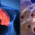 FDA approves the (ALK) tyrosine kinase inhibitor Ceritinib [Zykadia] for late-stage lung cancer