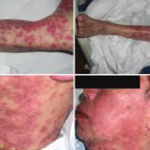 Rare But Potentially Fatal Skin Reactions (DRESS Syndrome) with Ziprasidone [Geodon]