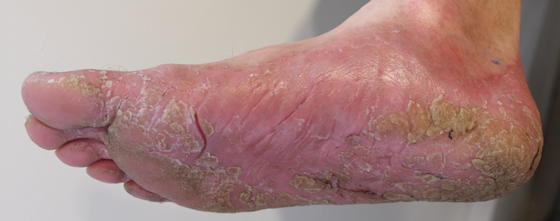 how to help psoriasis on feet