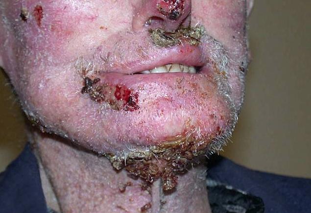 basal cell carcinoma, infiltrative - Skin Cancer