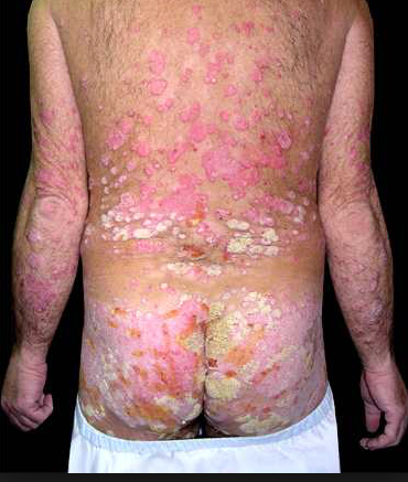 ixekizumab (taltz) for plaque psoriasis | thasso, Skeleton
