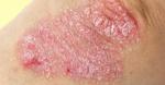 fumaraat psoriasis