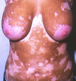 Skin bleaching adverse effect