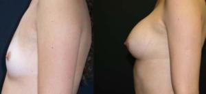 Avant et après.