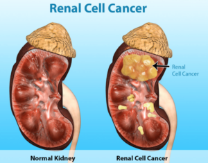 Renal Cell Cancer II