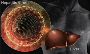 hepatitis-c-i