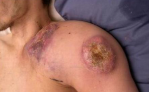 lymphome-ii
