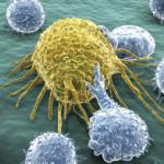Leucémie: la FDA autorise la première thérapie génique par cellules CAR T