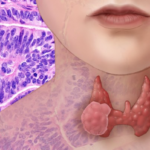 Dabrafenib/Trametinib-Combo approved for BRAF-positive anaplastic thyroid cancer