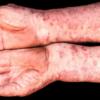 FDA approves Apremilast [Otezla] to treat psoriatic arthritis (PsA)