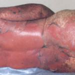 Panitumumab (Vectibix) – Rare Cases of Stevens-Johnson Syndrome (SJS) and Toxic Epidermal Necrolysis (TEN)