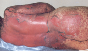 Panitumumab (Vectibix) - Rare Cases of Stevens-Johnson Syndrome (SJS) and Toxic Epidermal Necrolysis (TEN)