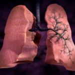 FDA approved two drugs for idiopathic pulmonary fibrosis (IPF)