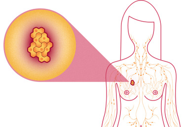 Theragenomic Medicine: Palbociclib (Ibrance) approved for postmenopausal women with advanced (metastatic) breast cancer
