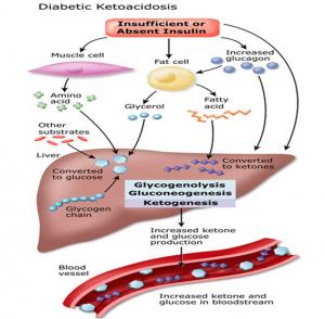 Ketoacidosis II