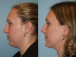 Closer to the ideal of beauty: Deoxycholic Acid (Kybella) as a treatment for fat below the chin approved