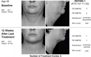 Closer to the ideal of beauty: Kybella | thasso