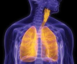 Sirolimus (Rapamune) for lymphangioleiomatosis (LAM), a very rare lung disease