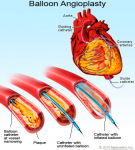 Cangrelor (Kengreal) a newly approved antiplatelet drug used during PCI heart procedure