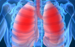 Theragenomic medicine: Orkambi approved by the FDA as a new treatment for cystic fibrosis
