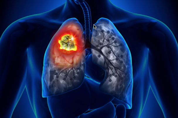 Remarkable: Pembrolizumab (Keytruda) now also for advanced non-small cell lung cancer (NSCLC)