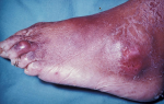 Is there help for patients suffering from gout? Lesinurad  (Zurampic) approved for the treatment of high blood uric acid levels