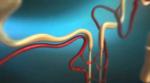 SGLT2-Hemmer: Empfehlung des PRAC zur Minimierung des Risikos von diabetischen Ketoazidosen