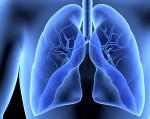 Risiko für Herzinsuffizienz bei Anwendung von Crizotinib (Xalkori)