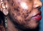 Suspension de la mise sur le marché des produits éclaircissants de la peau présentés en solution injectable