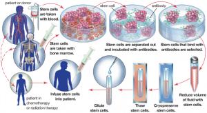 Hemato Stem Cells