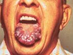 Immunosuppression: Gefahr der Reaktivierung einer Hepatitis-B-Virus Infektion unter Pomalidomid (Imnovid) Therapie