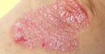 Association of Psoriasis With the Risk for Type 2 Diabetes Mellitus and Obesity