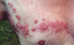 Virus-Reaktivierung und pulmonale Hypertonie unter Therapie mit Thalidomide Celgene