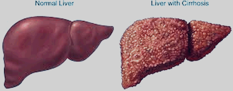The HCV saga goes on: Epclusa has been approved for treatment of chronic Hepatitis C virus (HCV) infection