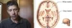 Progressive Multifokale Leukoenzephalopathie (PML): Seltene Fälle nach Behandlung von MS-Patienten mit Fingolimod (Gilenya)