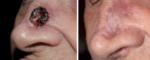Vorzeitiger Epiphysenfugenschluss unter Vismodegib (Erivedge) Therapie