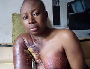 Advanced Breast Cancer Naijaman's