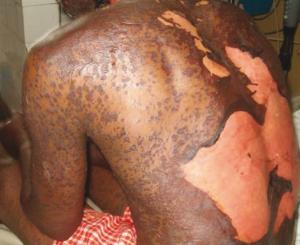 Toxic epidermal necrolysis (Lyell's syndrome)