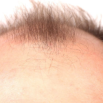 The Post Finasteride Syndrome (PFS): Are young men left alone until up to suicide?
