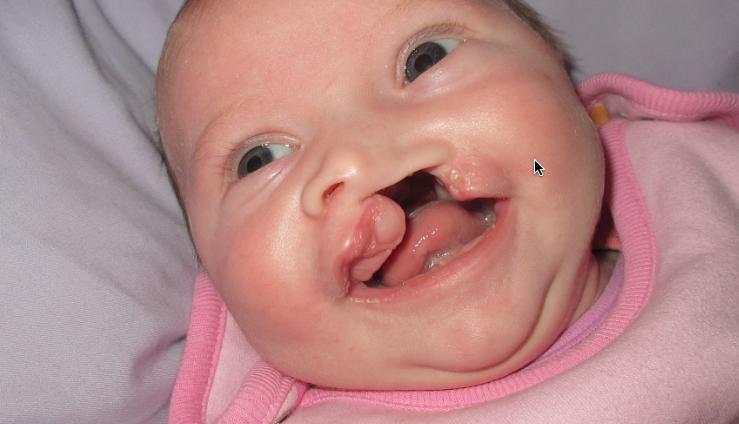 Schwere Missbildungen bei Kindern nach Einnahme von Valproat (Depakine) in der Schwangerschaft