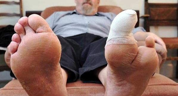 Risk of leg and foot amputations under Canagliflozin (Invokana, Invokamet)
