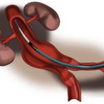 Tödliches Nichtwissen: Bauchaortenaneurisma als stiller Killer