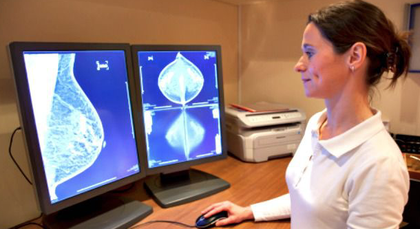 Ashkenazi Jewish Women: Little-known Gene Mutations May Boost Breast Cancer Risk