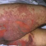 Schwere, auch fatale, Hautreaktionen mit humanen Epoetinen