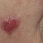 Abatacept (Orencia): Plattenepithelkarzinome, Hautpapillome, Lymphome und maligne  Neoplasmen der Lunge