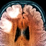 Cladribin: Risiko einer progressiven multifokalen Leukenzephalopathie (PML)
