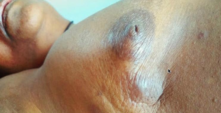 Olaparib Tablets (Lynparza): For breast cancer with BRCA gene mutation