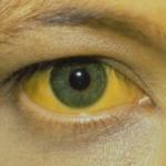 Nintedanib (Ofev): Schwere Leberschäden bei Patienten mit idiopathischer Lungenfibrose