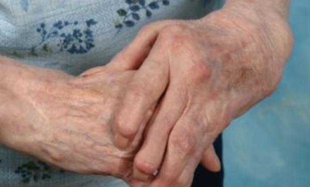 Tocilizumab (Actemra): Tödlich für gewisse Patienten