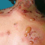 Risk of Bullous Pemphigoid with Type 2 Diabetes Drugs